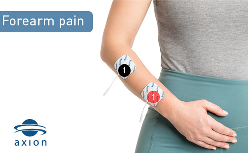 TENS-electrode-placement-for-forearm-pain