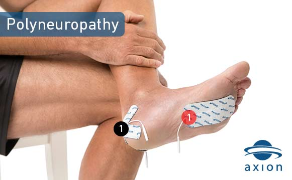 polyneuropathy-electrode-pad-placement