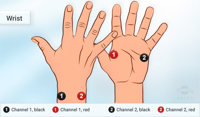 TENS in case of wrist pain, correct electrode placement