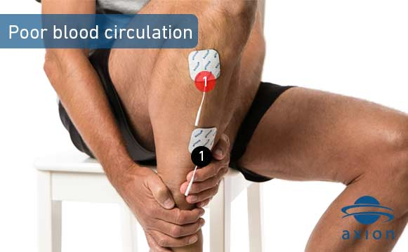 TENS therapy against poor blood circulation in the feet