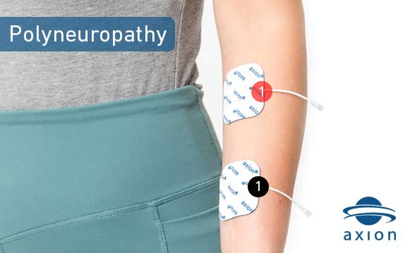 polyneuropathy-electrode-pad-placement-alternative