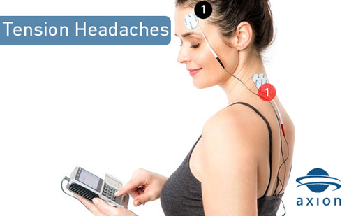 TENS-electrode-placement-for-tension-headaches