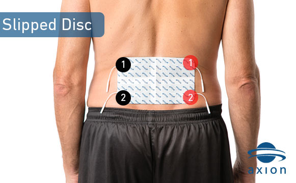 TENS electrode pad placement against a slipped disc