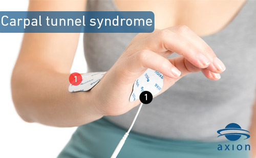 TENS-electrode-placement-for-carpal-tunnel-syndrome-pain