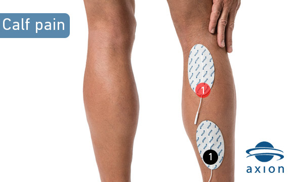 TENS-electrode-placement-for-calf-pain